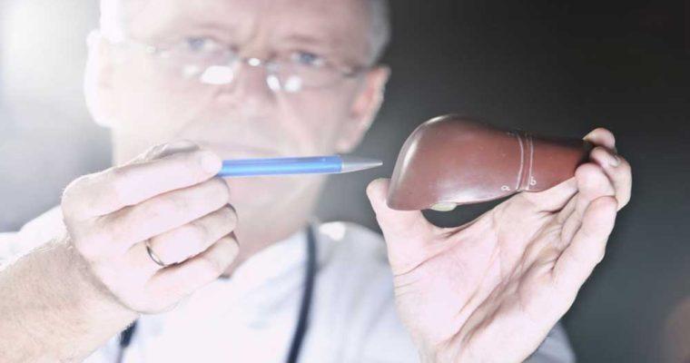 Diagnosis-of-alcoholic-liver-diseas