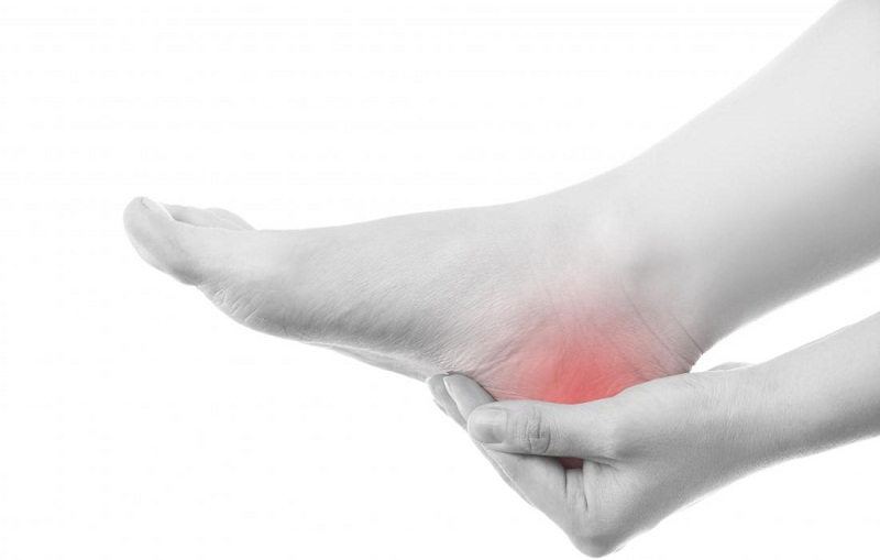 Plantar Fasciitis and Remedies for the Condition,