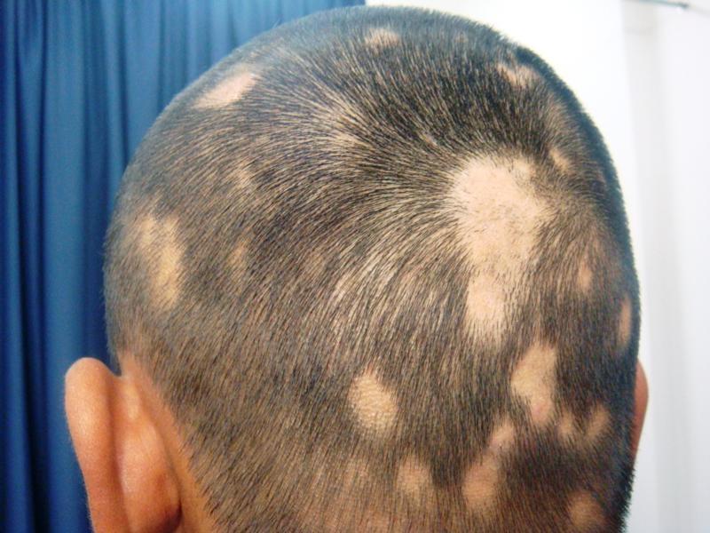 Reason for Hair loss
