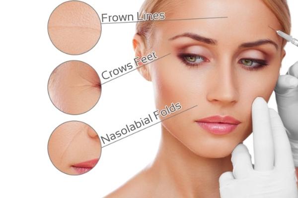 Educating Yourself on Botox
